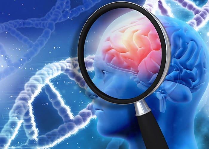تقلید از سلولهای مغز برای درک بیماری پارکینسون